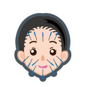 東洋医学の美容鍼灸